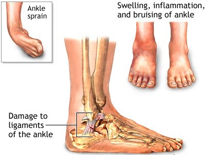 Image result for back ankle pain