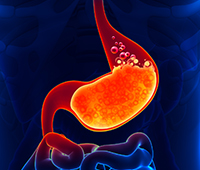 Acid reflux disease or Amlapitta Diagnosis