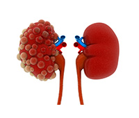 Acute Kidney Failure Ayurvedic treatment