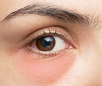 What is Blepharitis Ayurvedic treatment