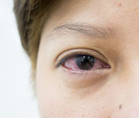 Conjunctivitis Ayurvedic treatment