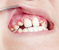 What is Gingivitis Ayurvedic treatment