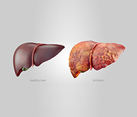 What is Liver Cirrhosis Ayurvedic treatment