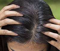 Premature greying Causes