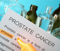 Prostate cancer Causes