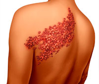 Shingles Ayurvedic treatment