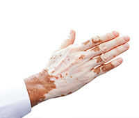 Vitiligo/leucoderma Ayurvedic treatment